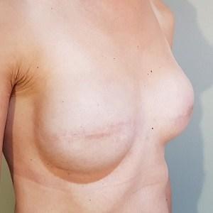 Before Prosthetic Nipples