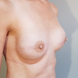 Medium Size Prosthetic Nipple By The M Store